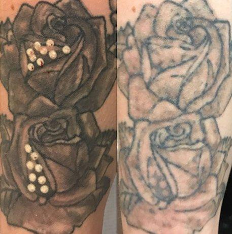 laser-tattoo-EN1 1YY UK