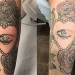 Laser Tattoo Removal Service - Underground Tattoos Enfield