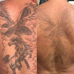 laser-tattoo-removal_undergroundtattoos_enfield_EN1 1YY UK